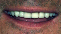 cosmetic dentistry woonsocket