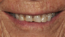 cosmetic dentist 02895